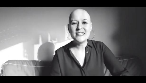 Mujeres calvas, rompiendo el tabú de la alopecia femenina